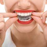 aligen for teethses